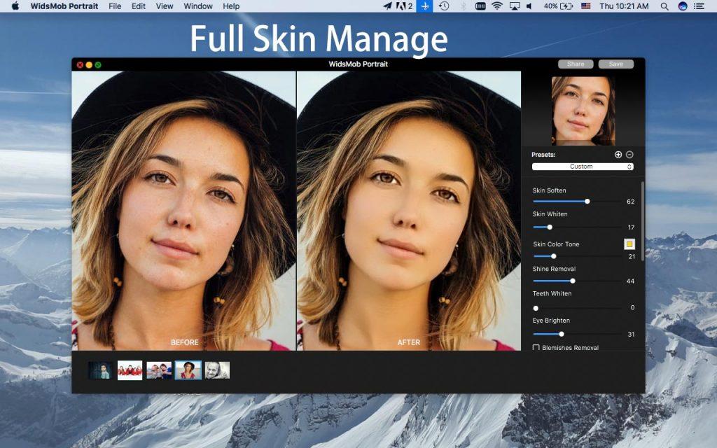 full-skin-manage