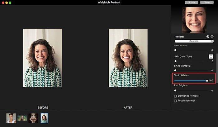 Portre Üzerinde Diş Beyazlatma